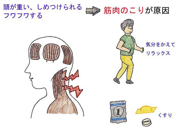 ふわふわめまい・頭重感|診察室でよくみる大人の病気 - みやけ内科・循環器科 院長ブログ