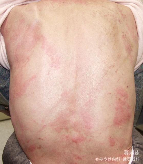 蕁麻疹,写真1