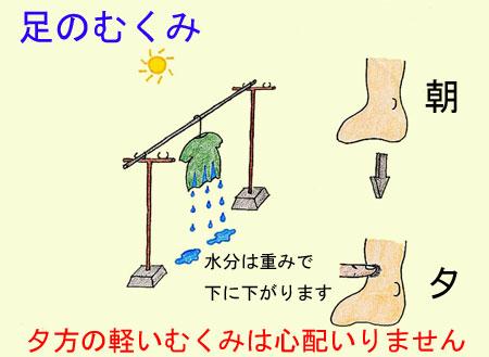 足のむくみ:医師が考える原因と対処法 症状辞典 …