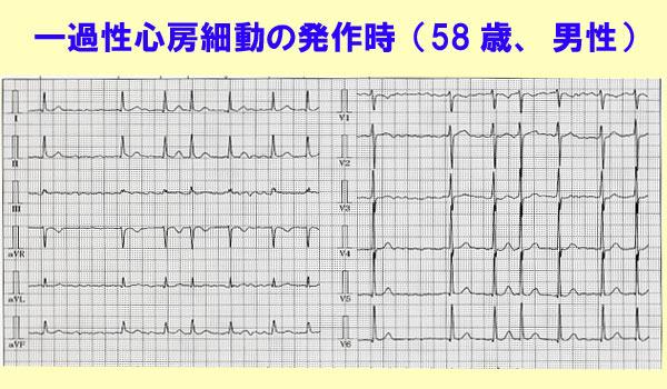 心房 発作 動 性 細 発作性心房細動の症状,原因と治療の病院を探す