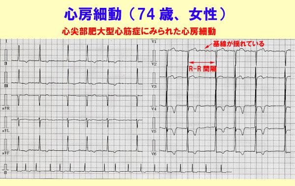 心房細動治療(薬物)ガイドライン:日経メディカル