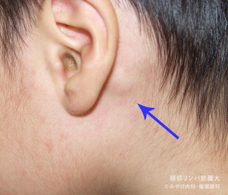 頚部リンパ節腫大,写真01
