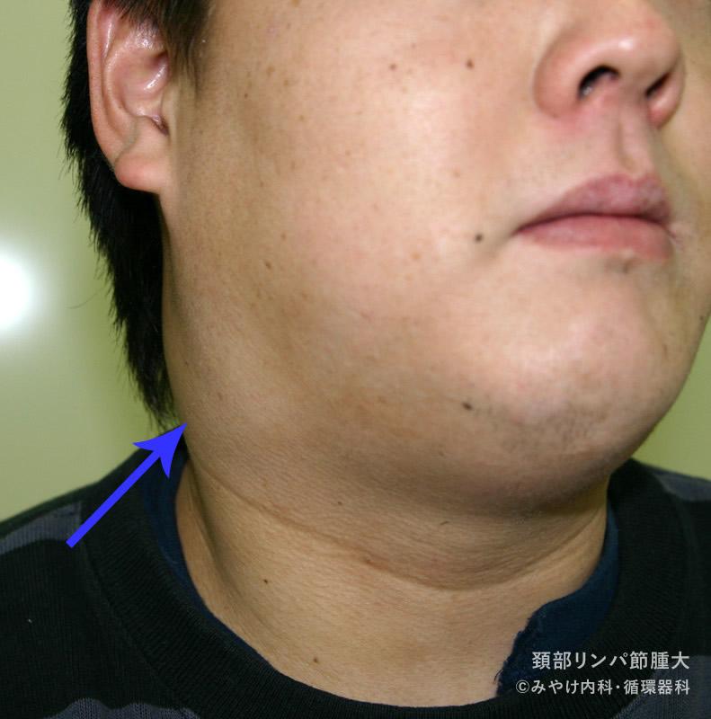 [写真で解説]頚部リンパ節腫大|写真で見る子どもの病気 - み ...