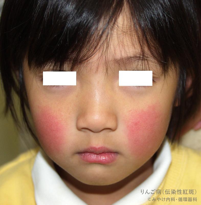 りんご病の皮膚症状(顔)