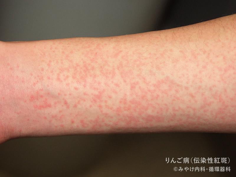 りんご病の皮膚症状(手足とからだ)