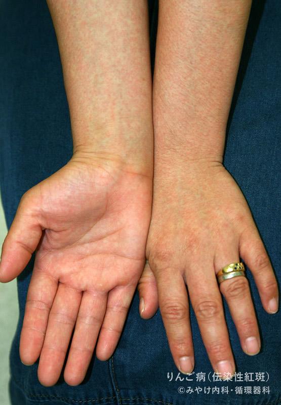 りんご病(伝染性紅斑)の手の発疹