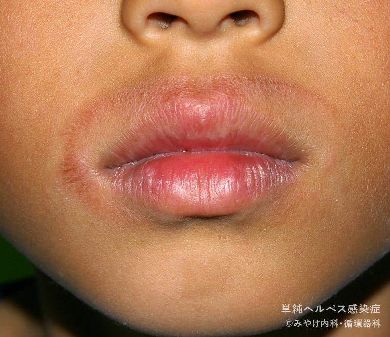 単純ヘルペス感染症,写真17 口唇ヘルペス