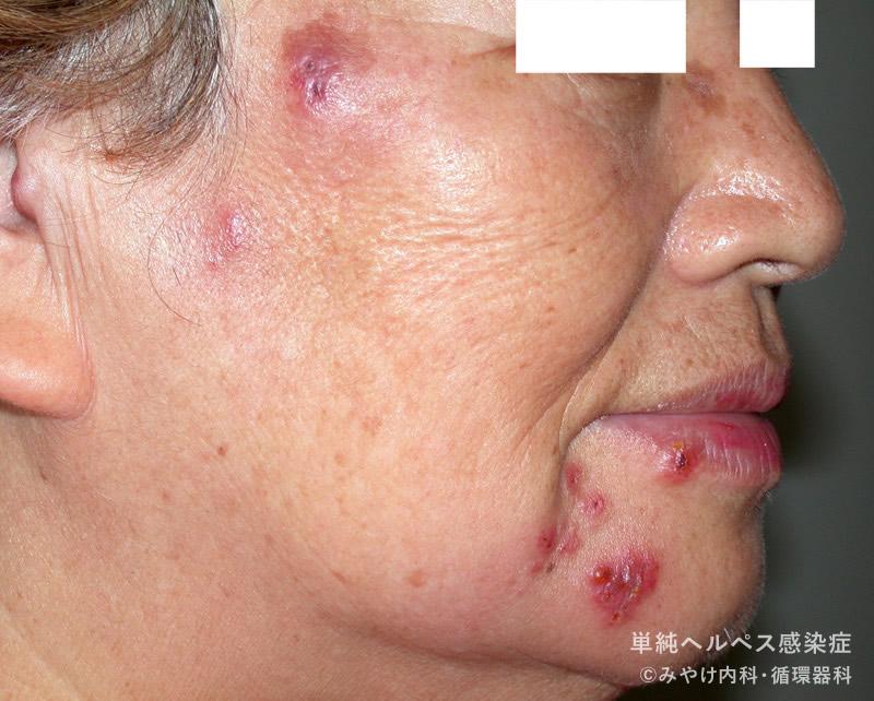 [写真で解説]単純ヘルペス感染症1(顔のヘルペス)|写真で見る ...