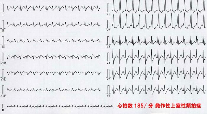 頻 脈 性 突発