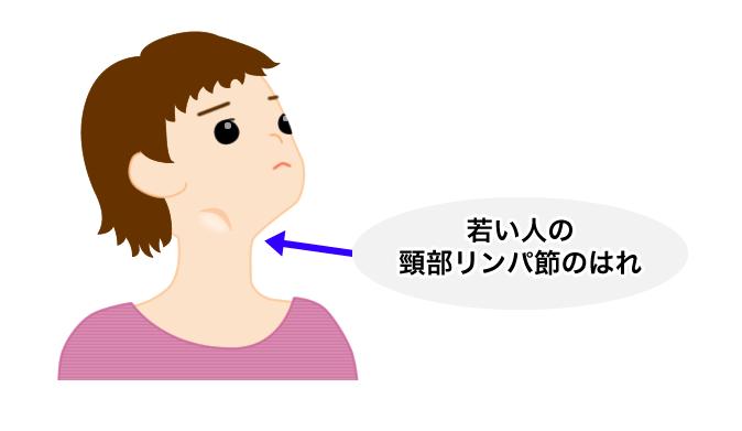 白血病原因: 若い人の頸部リンパ節のはれ | 町医者の診療メモ