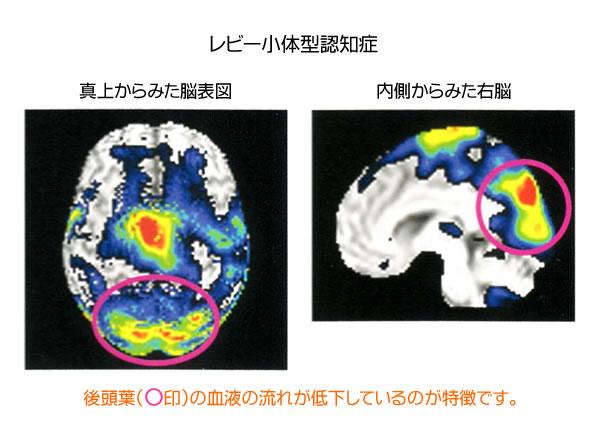 いろいろある認知症(2) | レビー小体型認知症と前頭側頭型 ...