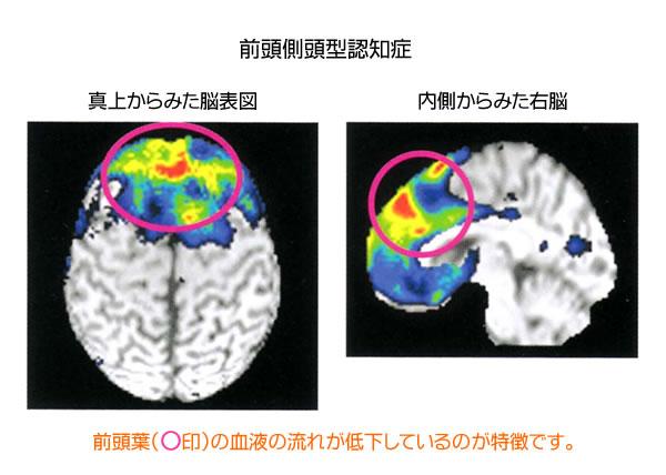 いろいろある認知症(2)